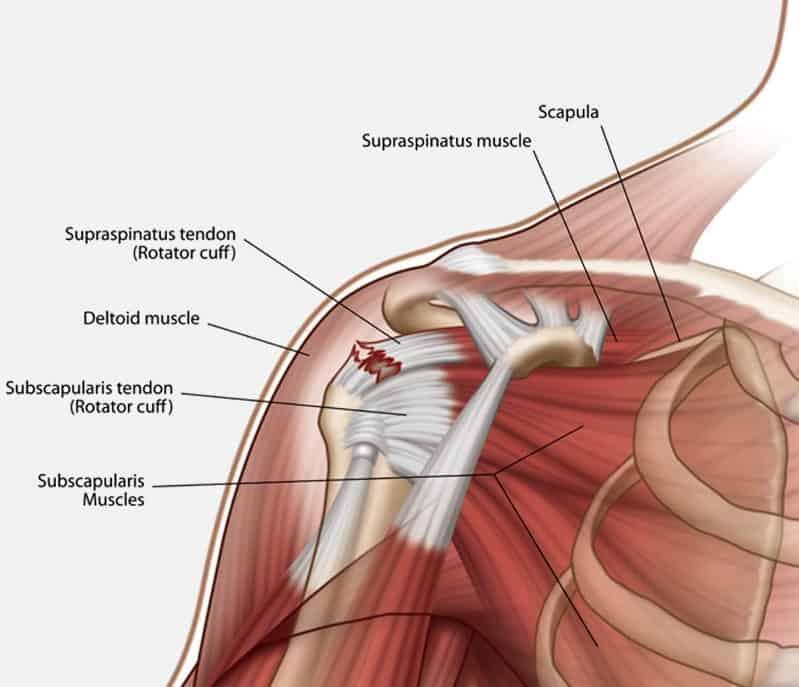 rock climbing shoulder injury